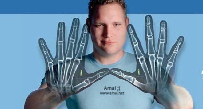 El 'biohacker' Amal Graafstra se ha implantado chips RFDI en...