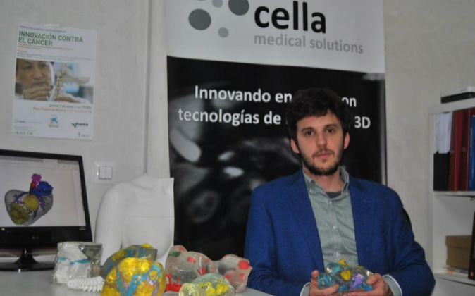 Darío García, fundador de Cella Medical Solutions, con un hígado...